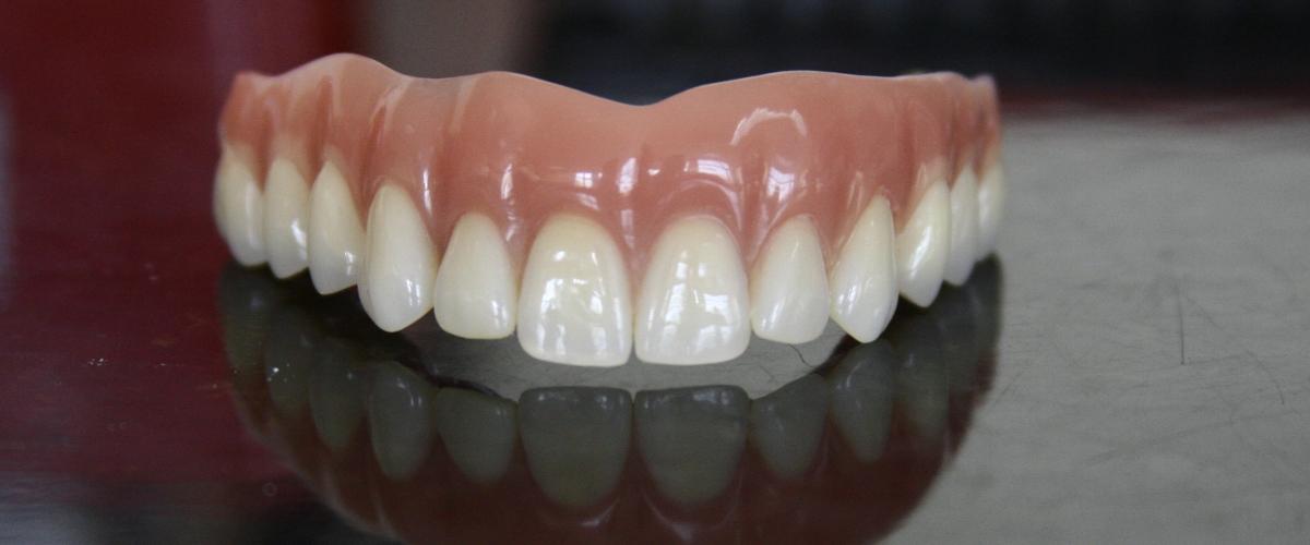 Recondent.ro - Tehnica Dentara Timisoara - Restaurari Protetice pe Implanturi